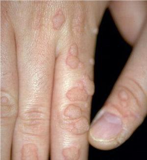 Долго заживает рана после удаления бородавки лазером